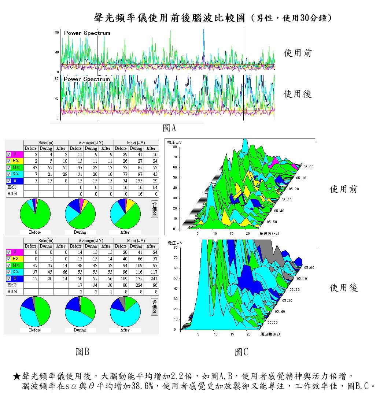 声光频率仪使用前后脑波比较图 男性 使用三十分钟