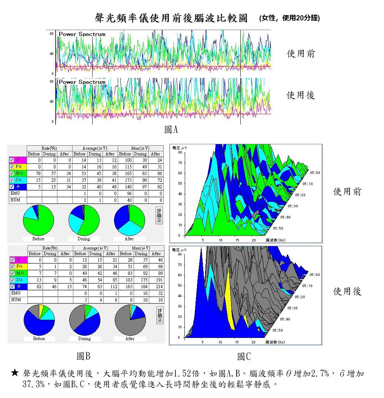 声光频率仪使用前后脑波比较图 女性 使用二十分钟